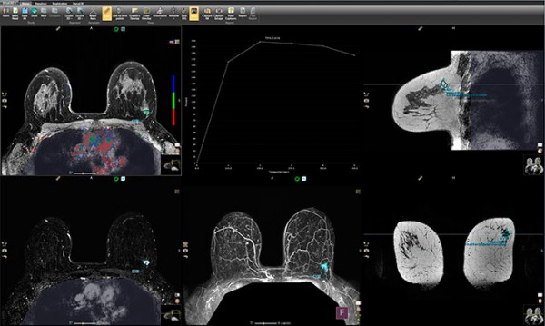 DCAD BREAST-3.4-Screenshot-MPR-wThumbs