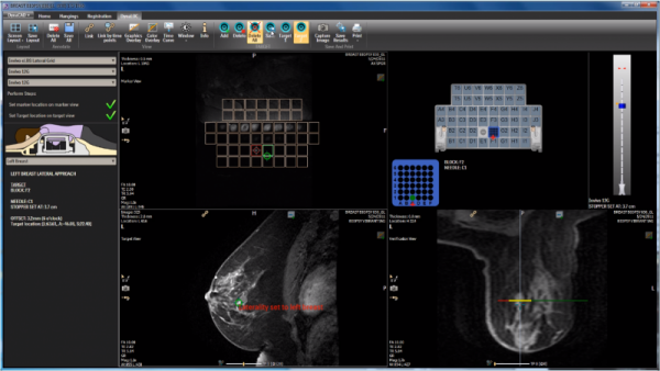 Dynacad Breast Interventional Planning